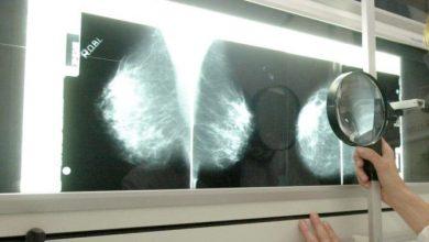 علاج سرطان الثدي عن طريق جوجل