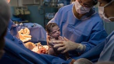 صورة لحظة ولادة غريبة لطفلة عابسة بطريقة غريبة في البرازيل